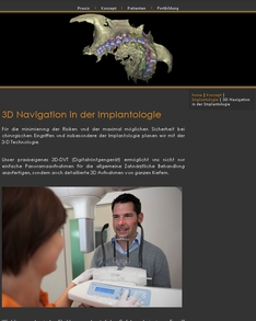 3D Navigation in der Implantologie